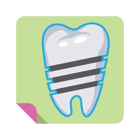dental implant Ilustracja