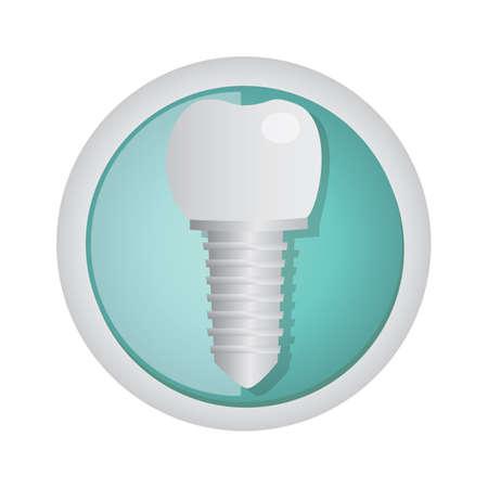 implantation: tooth implantation