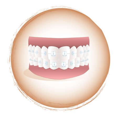 braces: teeth with braces