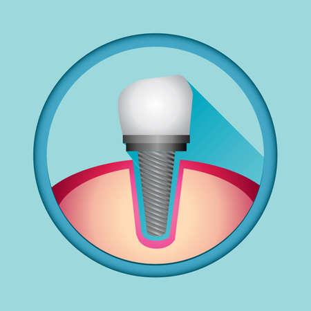 implant: implant