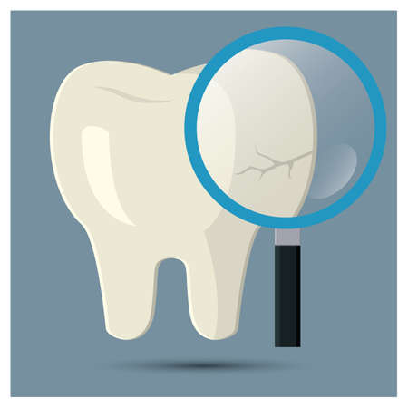 cracked tooth checkup