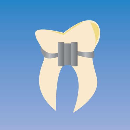 ブレースを有する歯します。 写真素材 - 81469488