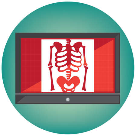 x ray sur le moniteur Vecteurs