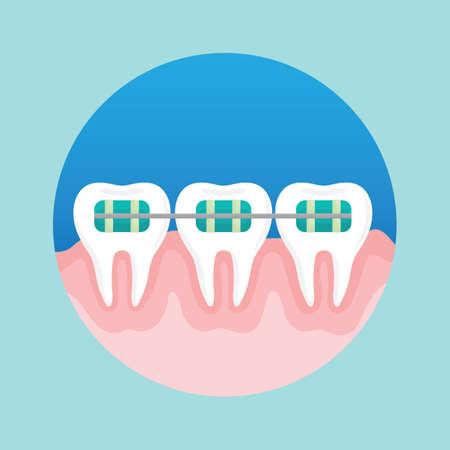Tanden met beugels Stock Illustratie