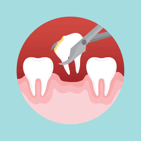 removing: removing decayed tooth Illustration