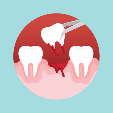tooth extraction: tooth extraction Illustration