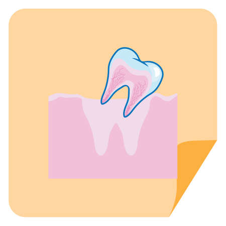 root canal: loose tooth from gum