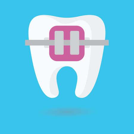 braces: tooth braces Illustration