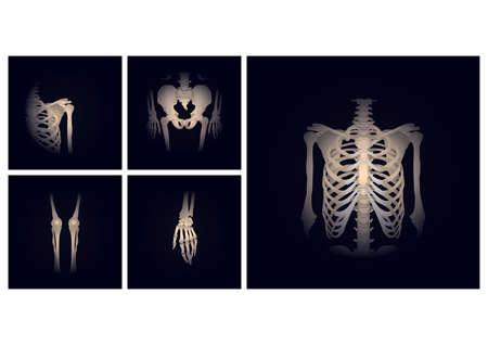 Teile des Skeletts Standard-Bild - 81538476
