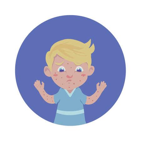 Niño con varicela Foto de archivo - 79152144