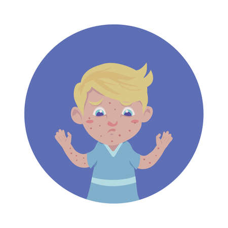 varicela: Niño con varicela