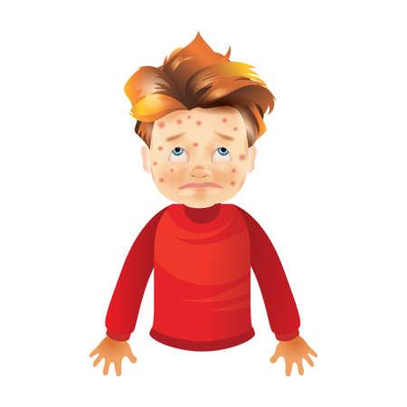 boy with chickenpox Illustration