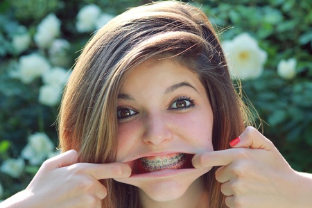 braces: Young pretty teenager with funny expression , showing her braces .