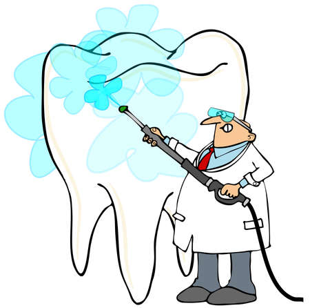 pressure washing: Dentist pressure washing a giant tooth Stock Photo