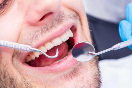 closeup of dentist's tools in the patient's mouth Foto de archivo