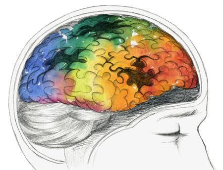 Human brain with Alzheimer's disease or other cerebral problem. Standard-Bild