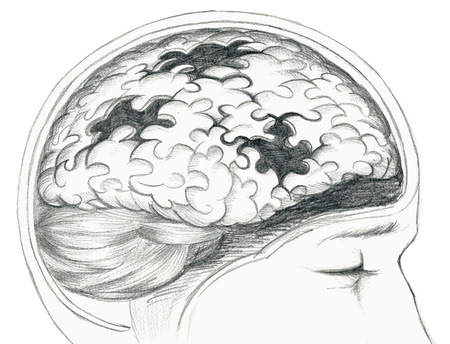 deficiency: Grey illustration of human brain with cerebral problem.