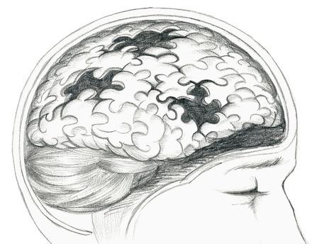 Grey illustration of human brain with cerebral problem.