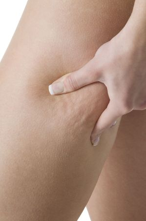 close up on the leg of a girl showing her cellulite Stock Photo - 3083845