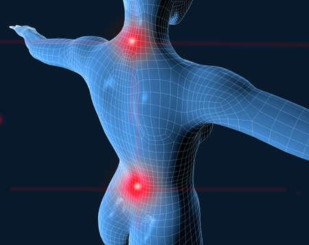 cervicales: 3D de malla azul de humanos con dolor en el cuello y de los ri�ones
