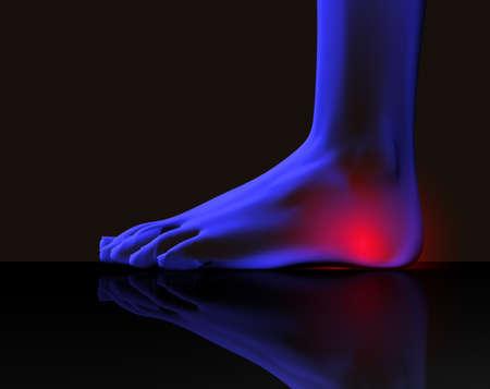 tacones: Imagen de rayos x de pie con dolor  Foto de archivo
