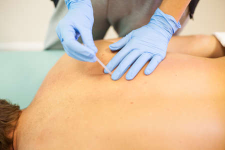 Doctor sticks needle into man's body on the acupuncture