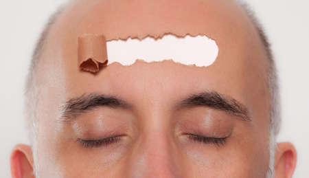 bald man: Cerca de la cabeza de un hombre con una abertura