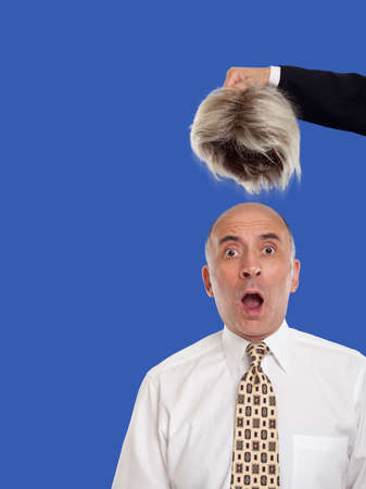 revealed: Bald man revealed by removing the toupee