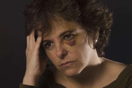 anguished: Donna pensive dopo che fa danneggiare benn