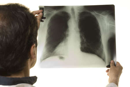 Doctor looking at X-ray on white background Stock Photo - 4695730