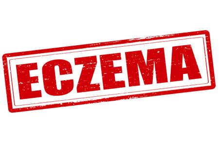 rash: Rubber stamp with word eczema inside, vector illustration Illustration