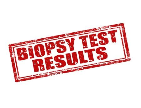test results: Grunge timbro di gomma con il testo biopsia Risultati del test, illustrazione vettoriale