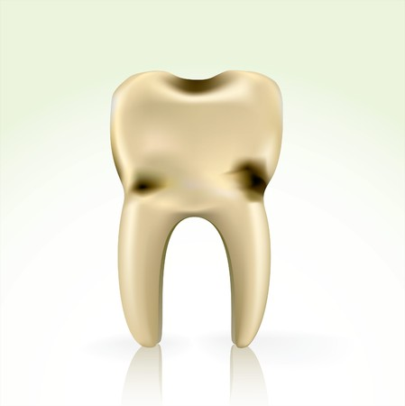 unhealthy, yellow cavity tooth. better floss and brush regularly