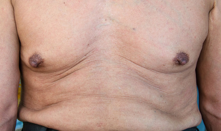 elderly man with a cellulite on a stomach. photo