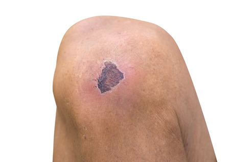 Dried wound on knee.