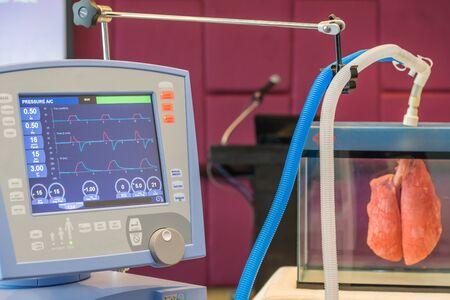 icu: The waves of blood pressure EKG in monitor for ICU room.