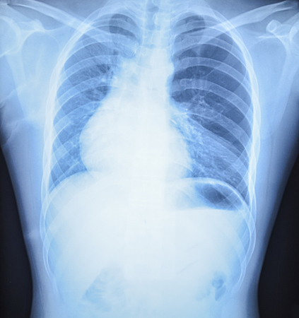 radiological: x-ray results in hospital.