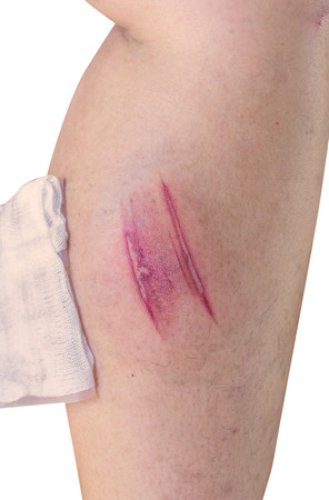 lesion: Lesion on a leg from Horrible burns.