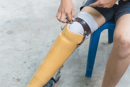New aluminium prostheses legs for amputee patient.
