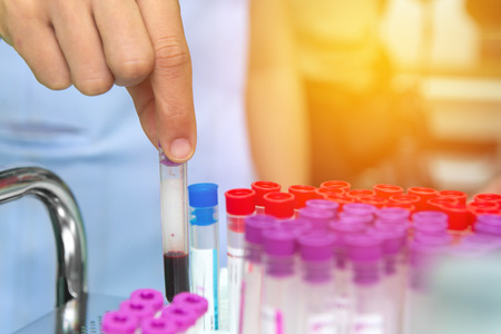 hand holding tube with collection blood samples in laboratory at hospital.