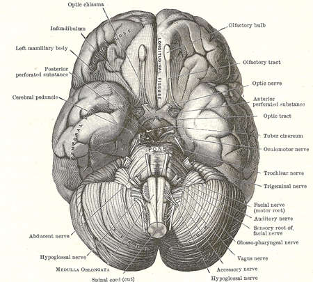 Dissection of the human brain - base of brain and cranial nerves,	from an early 20th century anatomy textbook, out of copyright		