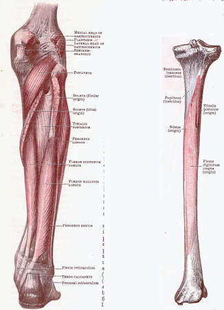 Dissection of the leg, muscles and attachments, from an early 20th century anatomy textbook, out of copyright   Editorial