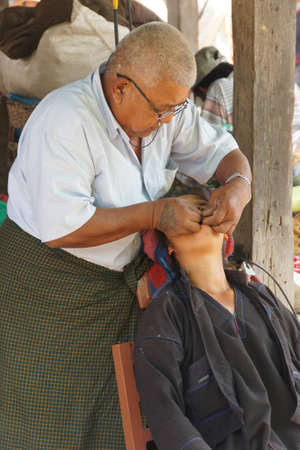 weekly market: INLE LAKE, MYANMAR - MAR 1, 2015 - Dentist treats a patient at the weekly market, Inle Lake Myanmar (Burma)