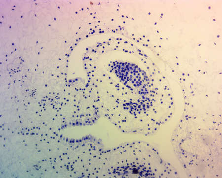 ovario: Lillium Ovario, manchado, visto bajo microscopio de alta magnificaci�n Foto de archivo