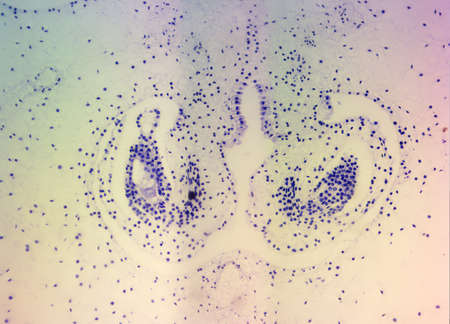 ovaire: Lillium Ovaire, taché, vu sous haute microscope de grossissement