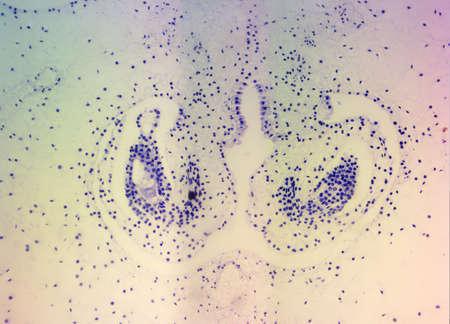 ovary: Lillium Ovario, manchado, visto bajo microscopio de alta magnificaci�n Foto de archivo
