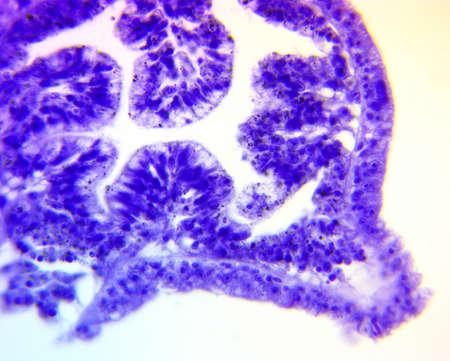 plankton: Hydra, un g�nero de animales de agua dulce simples pertenecientes al phylum Cnidariaseen bajo microscopio de alta magnificaci�n Foto de archivo