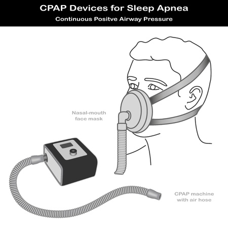Sleep Apnea. CPAP machine with air hose, nose - mouth face mask on model. Continuous positive air pressure for treatment of sleep apnea and hypopnea.