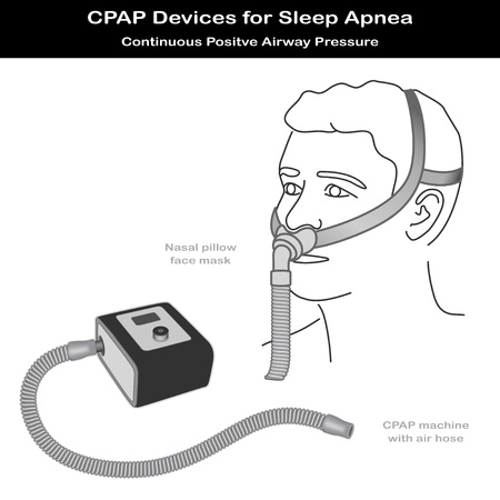 pressurized: Sleep Apnea. CPAP machine with air hose, nose pillow face mask on model. Continuous positive air pressure for treatment of sleep apnea and hypopnea,