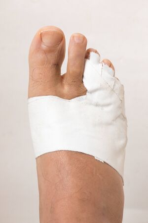 Close up of a Mans Bandaged up Broken Toe Stock Photo
